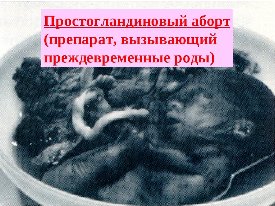 Простогландиновый аборт (препарат, вызывающий преждевременные роды)
