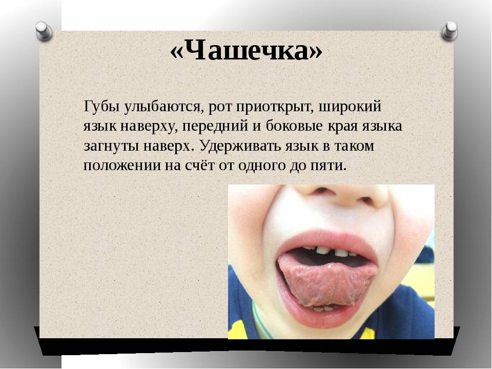 «Чашечка» Губы улыбаются, рот приоткрыт, широкий язык наверху, передний и бок...