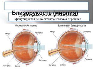 Дефект зрения, при котором изображение фокусируется не на сетчатке глаза, а п