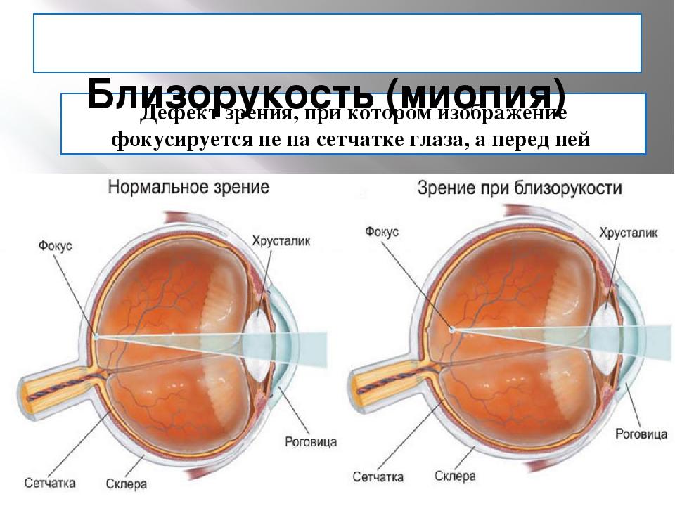 Дефект зрения, при котором изображение фокусируется не на сетчатке глаза, а п...