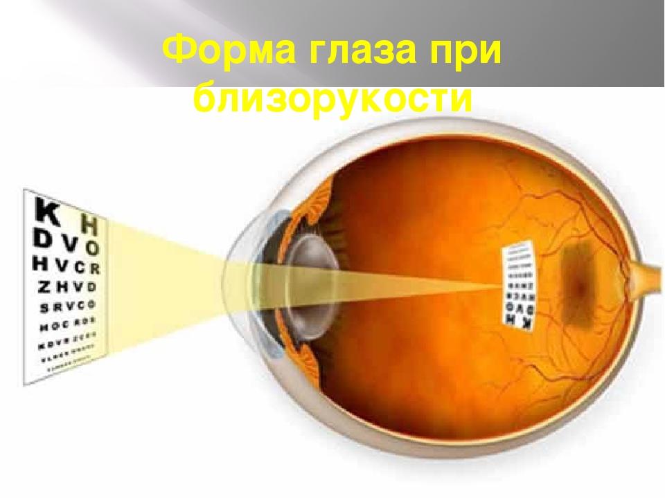 Форма глаза при близорукости