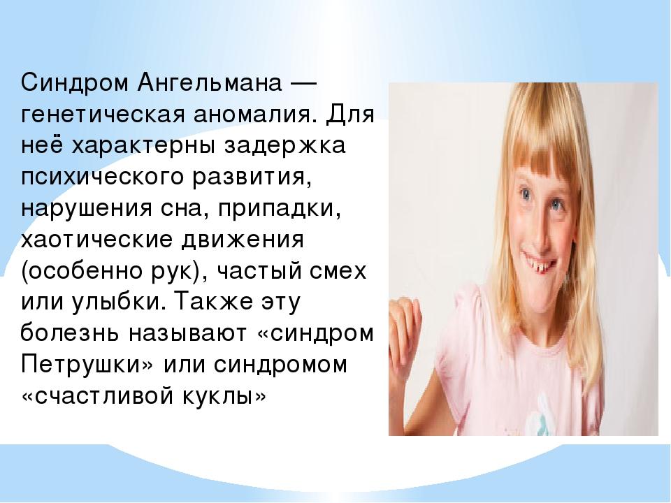 Синдром Ангельмана — генетическая аномалия. Для неё характерны задержка психи...