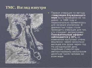 ТМС. Взгляд изнутри Первая операция по методу стимуляции блуждающего нерв был