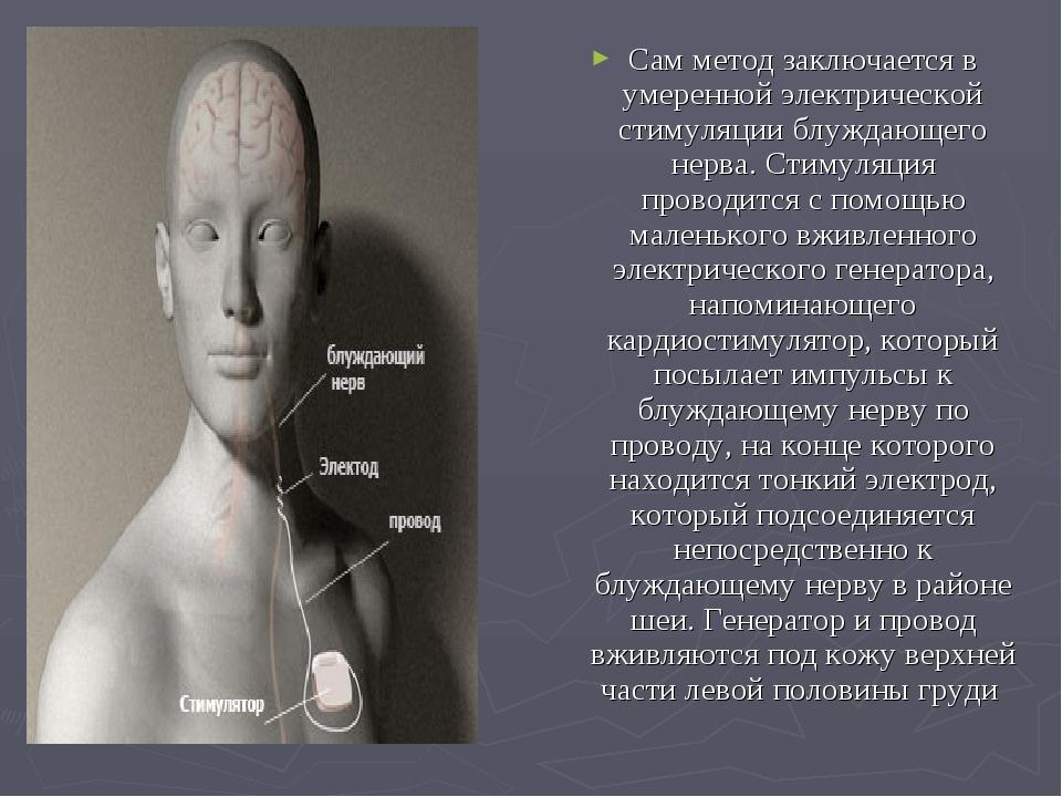 Сам метод заключается в умеренной электрической стимуляции блуждающего нерва....
