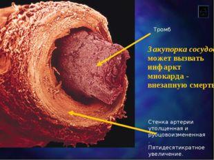 Стенка артерии утолщенная и рубцовоизмененная. Пятидесятикратное увеличение.