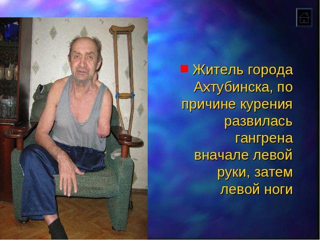 Житель города Ахтубинска, по причине курения развилась гангрена вначале левой...