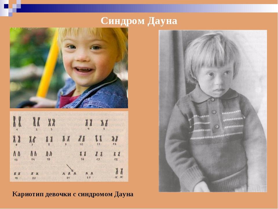 Синдром Дауна Кариотип девочки с синдромом Дауна