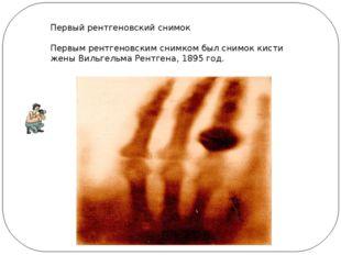 Первый рентгеновский снимок Первым рентгеновским снимком был снимок кисти жен