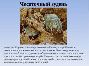 Чесоточный зудень Чесоточный зудень – это микроскопический клещ, который живе