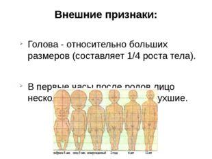 Внешние признаки: Голова - относительно больших размеров (составляет 1/4 рост