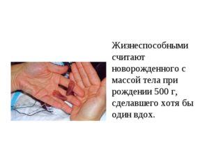 Жизнеспособными считают новорожденного с массой тела при рождении 500 г, сде