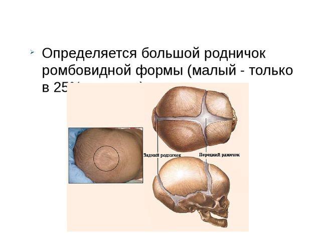 Определяется большой родничок ромбовидной формы (малый - только в 25% случае...