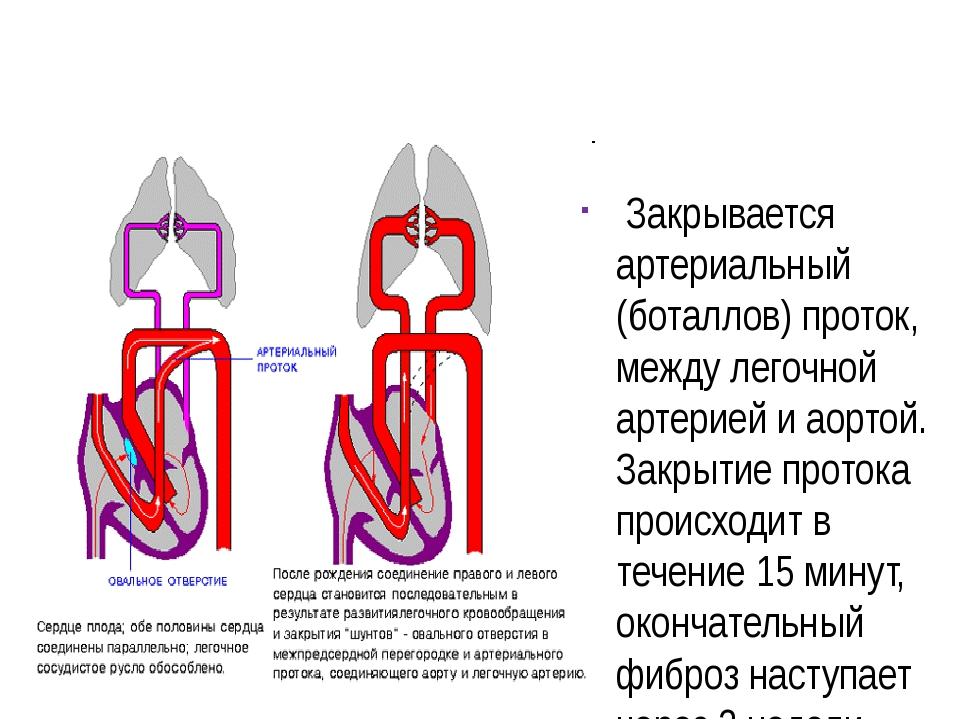 Закрывается артериальный (боталлов) проток, между легочной артерией и аортой...