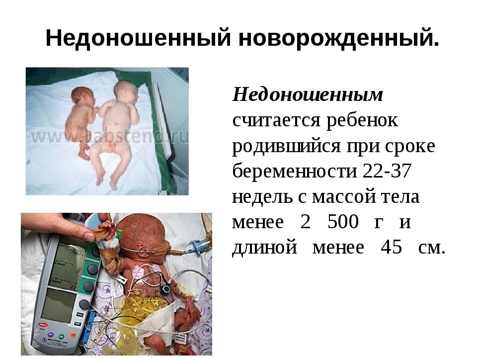Недоношенный новорожденный. Недоношенным считается ребенок родившийся при ср...
