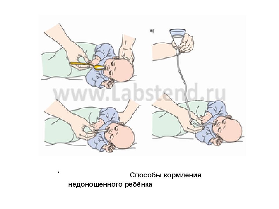 Способы кормления недоношенного ребёнка