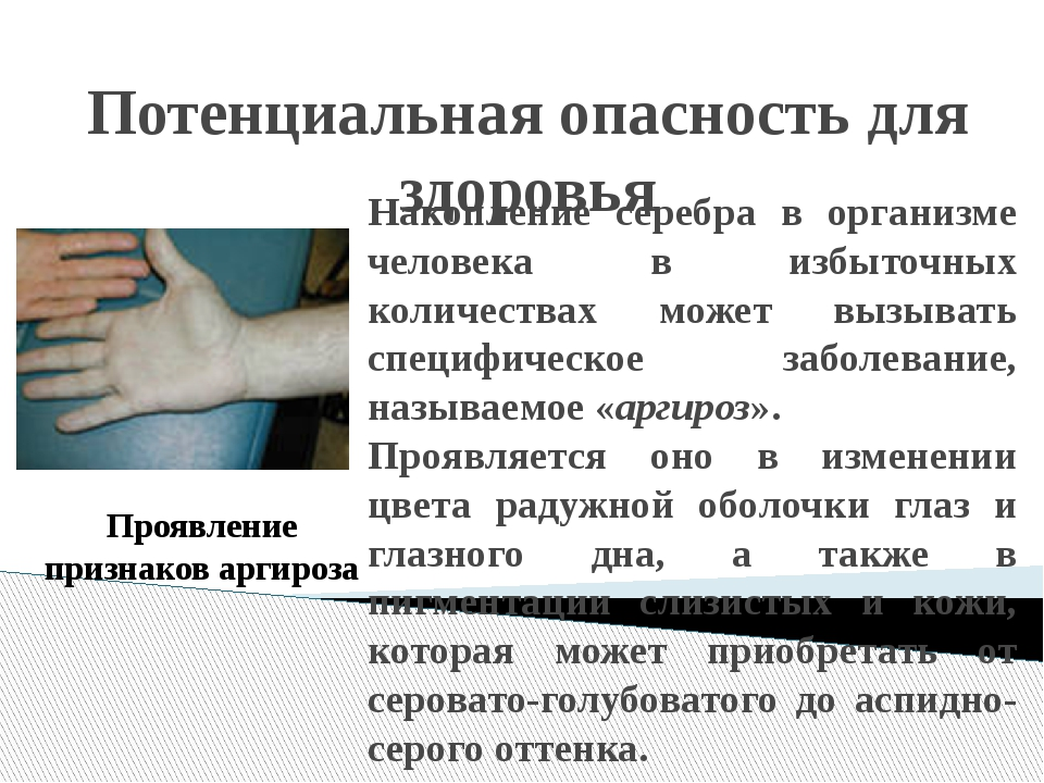 Потенциальная опасность для здоровья Накопление серебра в организме человека...