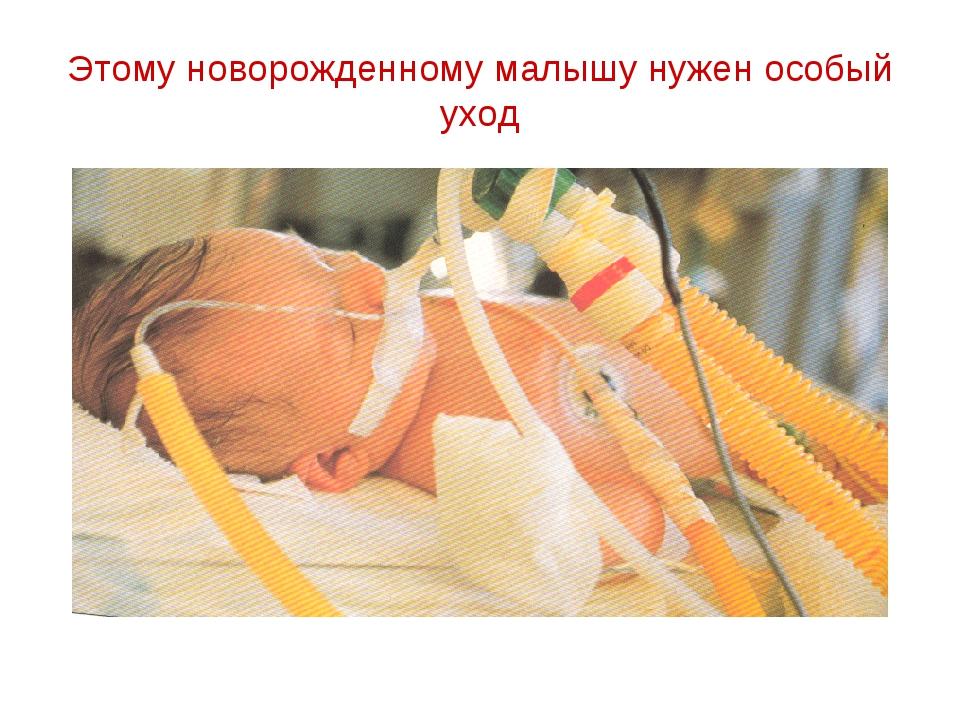 Этому новорожденному малышу нужен особый уход