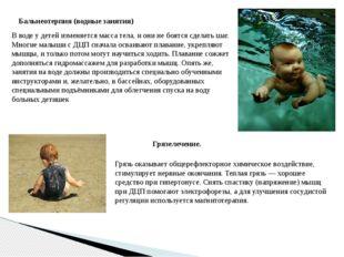 Бальнеотерпия (водные занятия) В воде у детей изменяется масса тела, и они не