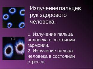 Излучение пальцев рук здорового человека. 1. Излучение пальца человека в сост