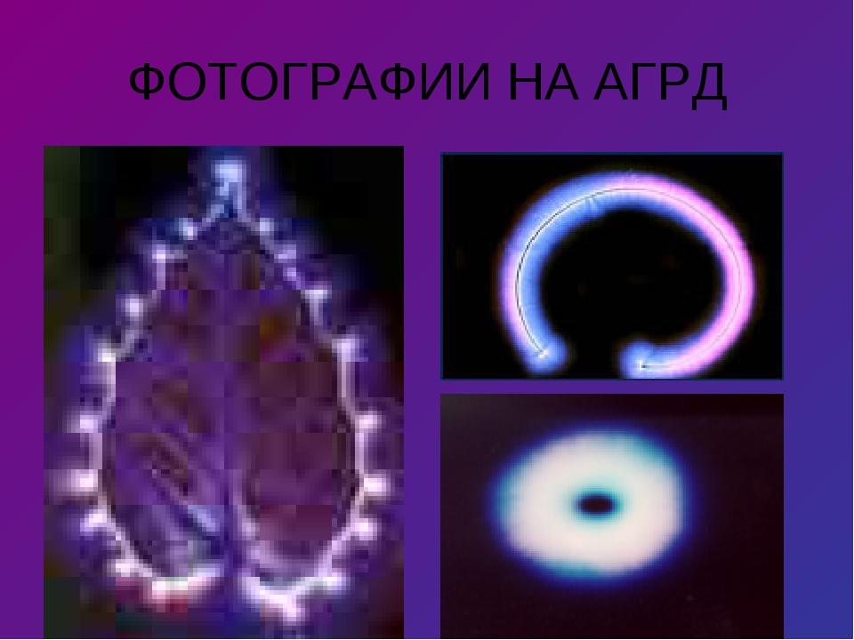 ФОТОГРАФИИ НА АГРД