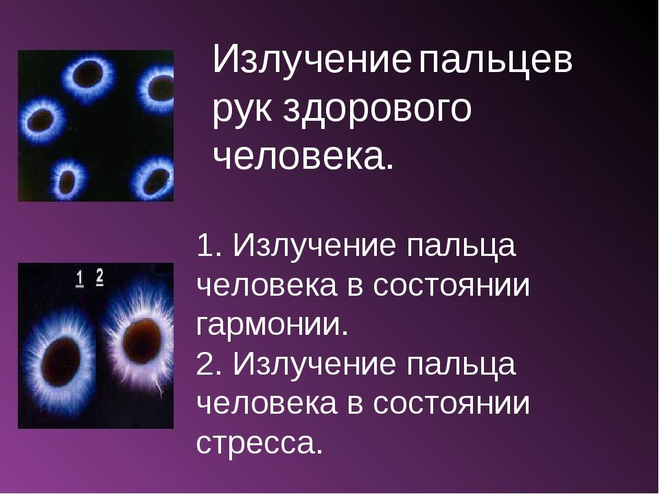 Излучение пальцев рук здорового человека. 1. Излучение пальца человека в сост...
