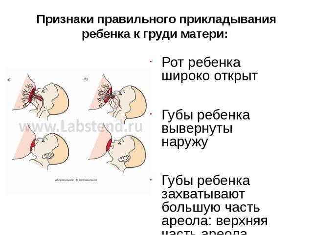 Признаки правильного прикладывания ребенка к груди матери: Рот ребенка широко...