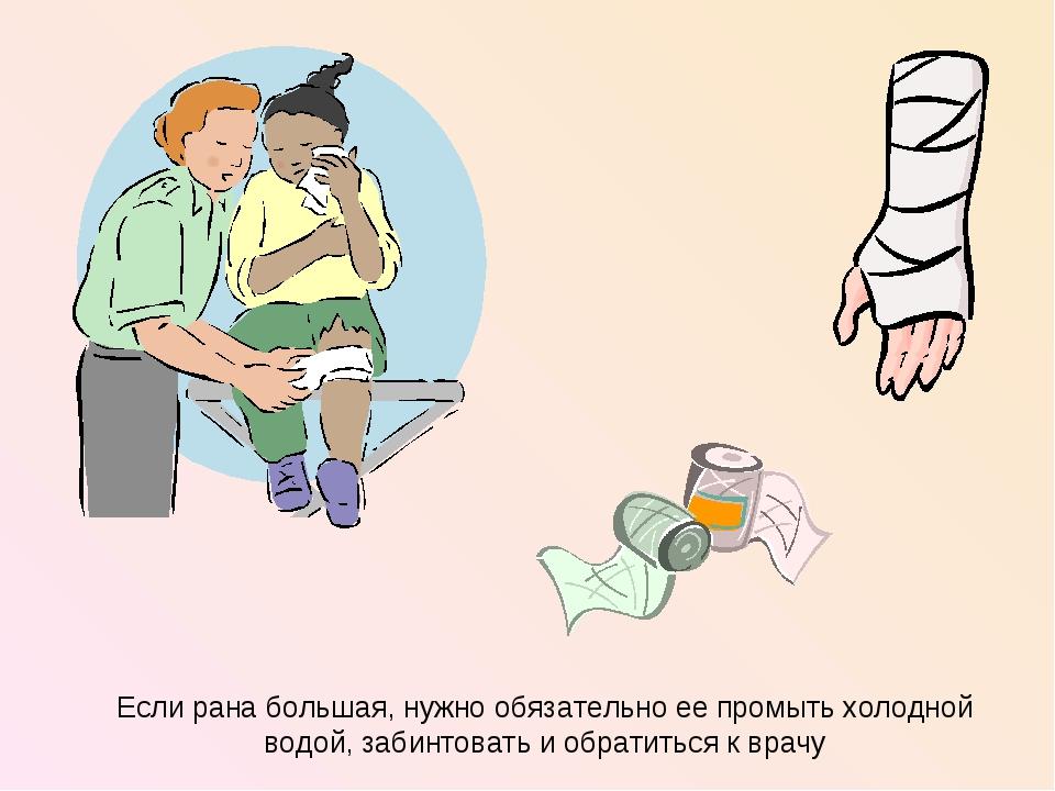 Если рана большая, нужно обязательно ее промыть холодной водой, забинтовать и...