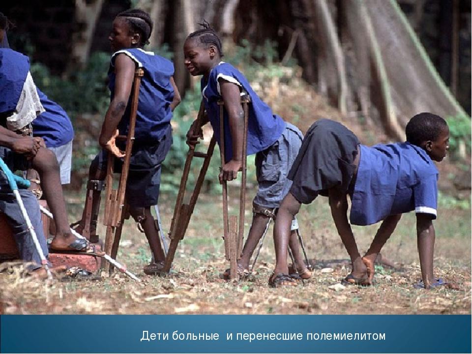 Дети больные и перенесшие полемиелитом