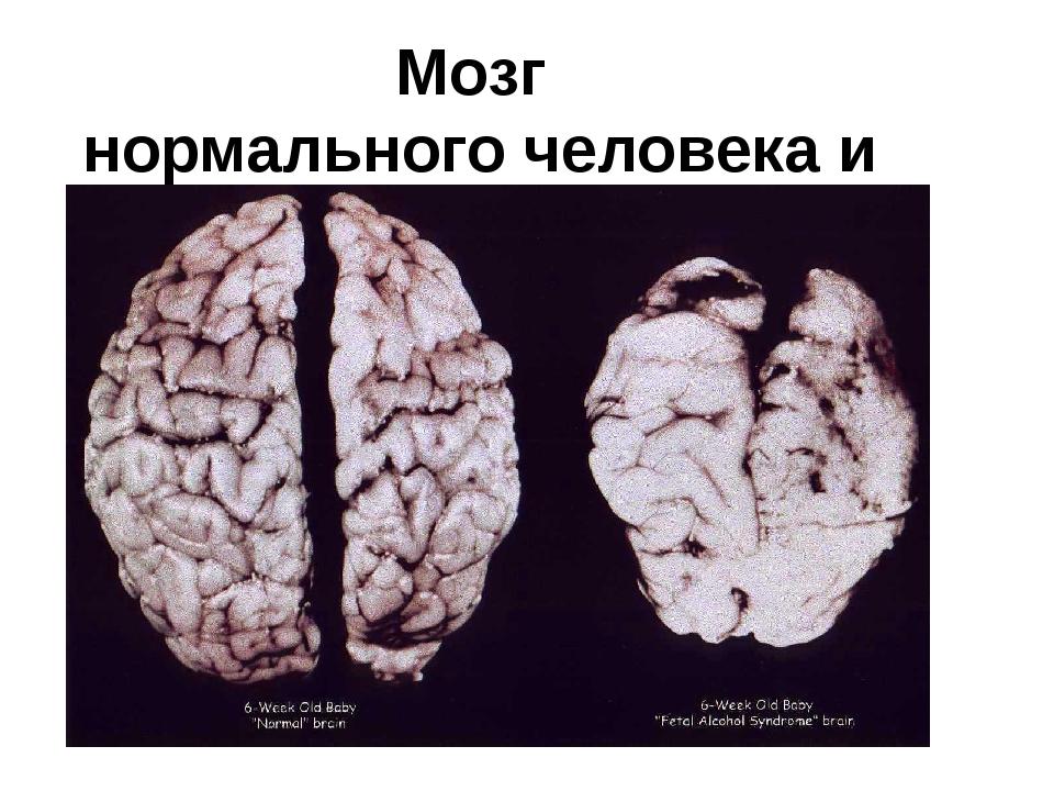 Мозг нормального человека и алкоголика.