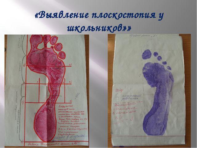 «Выявление плоскостопия у школьников»»