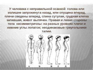 У человека с неправильной осанкой голова или излишне запрокинута назад, или о