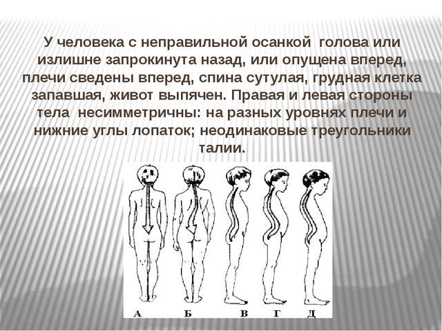 У человека с неправильной осанкой голова или излишне запрокинута назад, или о...