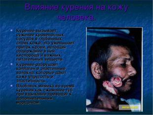 Влияние курения на кожу человека. Курение вызывает сужение кровеносных сосудо