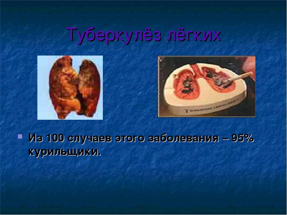 Туберкулёз лёгких Из 100 случаев этого заболевания – 95% курильщики.