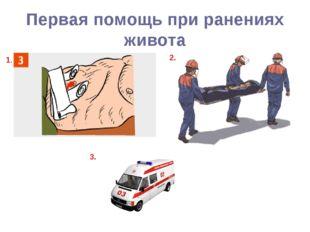 Первая помощь при ранениях живота 1. 2. 3.