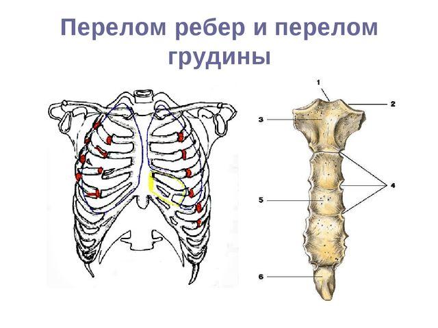 Перелом ребер и перелом грудины