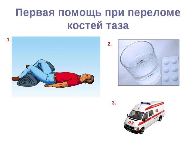 Первая помощь при переломе костей таза 1. 2. 3.