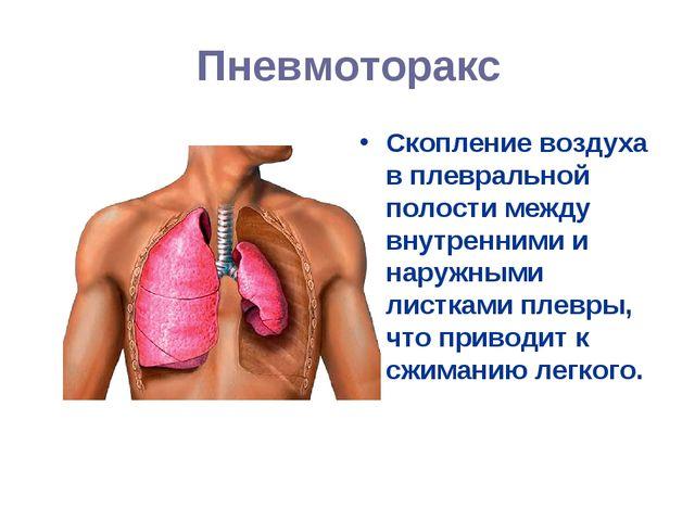 Пневмоторакс Скопление воздуха в плевральной полости между внутренними и нару...