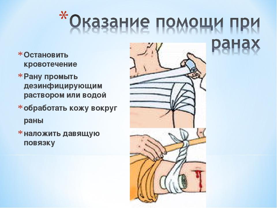 Остановить кровотечение Рану промыть дезинфицирующим раствором или водой обра...