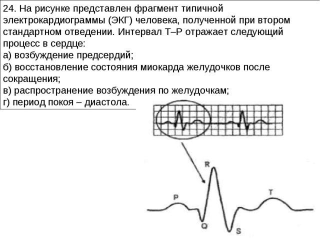 24. На рисунке представлен фрагмент типичной электрокардиограммы (ЭКГ) челове...