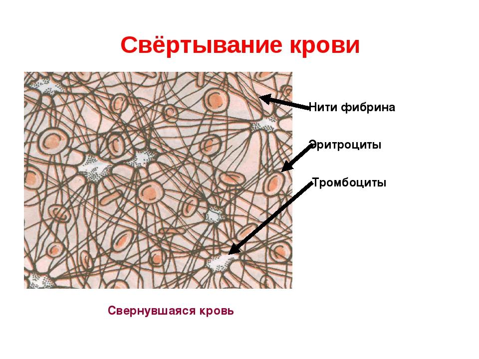 Свёртывание крови Свернувшаяся кровь Нити фибрина Эритроциты Тромбоциты