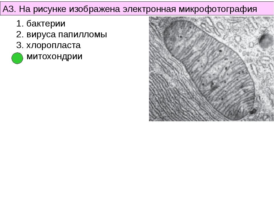 А3. На рисунке изображена электронная микрофотография бактерии вируса папилло...