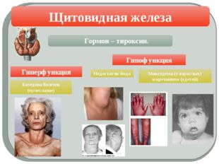 Щитовидная железа Гипофункция Гиперфункция Микседема (у взрослых) и кретиниз