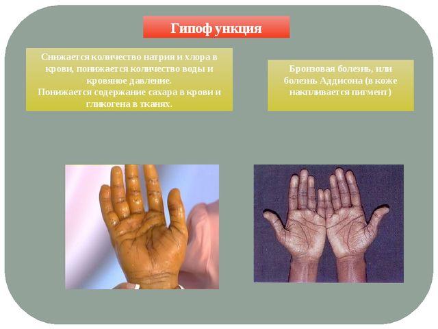 Гипофункция Бронзовая болезнь, или болезнь Аддисона (в коже накпливается пигм...