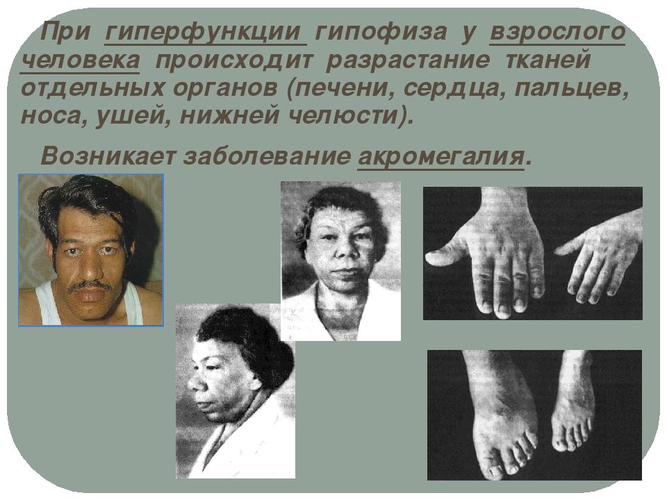При гиперфункции гипофиза у взрослого человека происходит разрастание тканей...