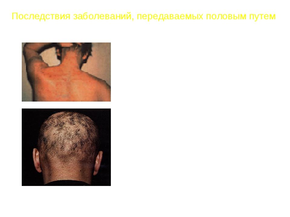 Симптомы сифилиса вторичные Симптомы вторичного сифилиса дают о себе знать че...