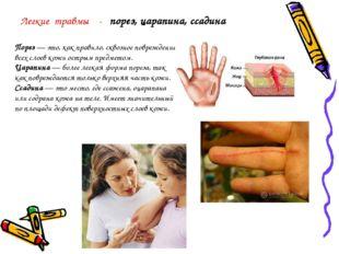 Порез— это, как правило, сквозное повреждение всех слоев кожи острым предмет