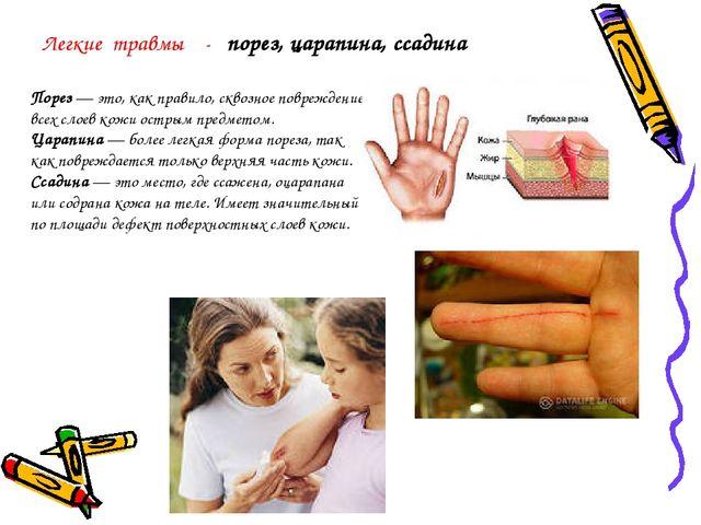 Порез— это, как правило, сквозное повреждение всех слоев кожи острым предмет...