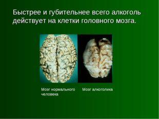 Быстрее и губительнее всего алкоголь действует на клетки головного мозга. Мо