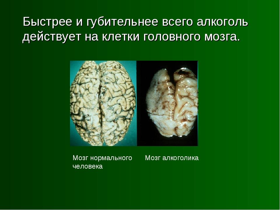 Быстрее и губительнее всего алкоголь действует на клетки головного мозга. Мо...